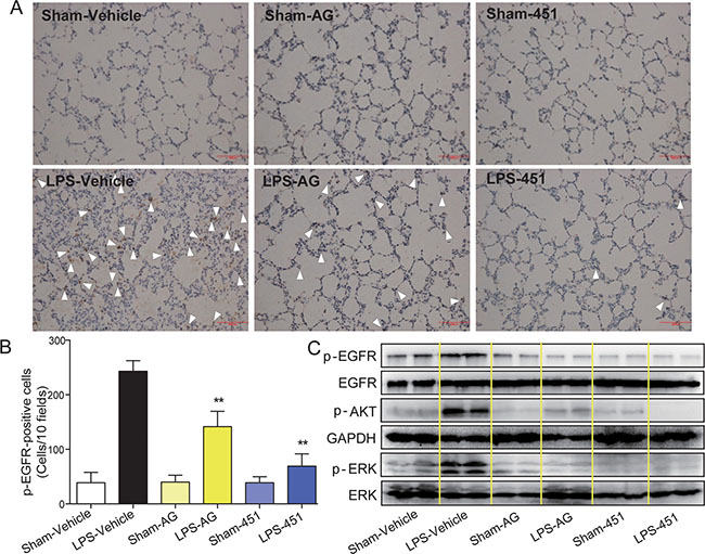 AG1478 and 451 reduced LPS-induced EGFR activation in rats.
