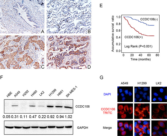 CCDC106 expression in NSCLC specimens and cell lines.