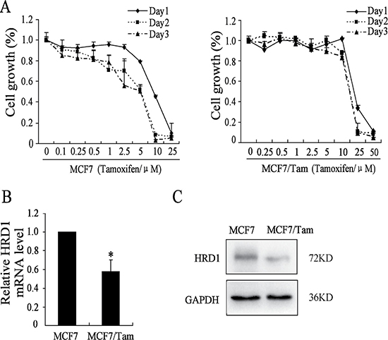 HRD1 is downregulated in MCF7/Tam cells.