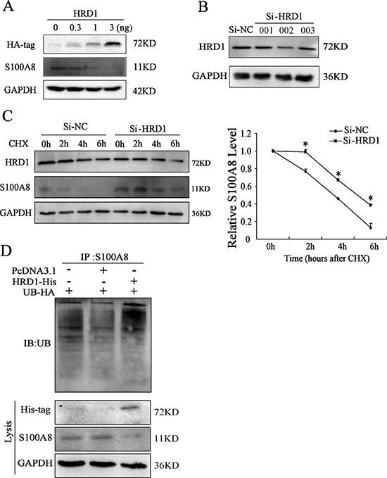 HRD1 promotes the degradation of S100A8 through ubiquitination.