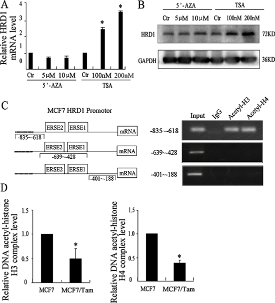 HRD1 is upregulated by acetylation of histone.