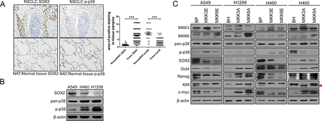 Activated p38 negatively regulates the expression of stemness proteins in non-small cell lung cancer (NSCLC).