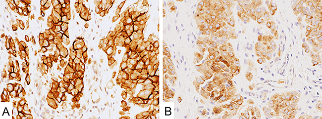 Mesothelin expression in malignant mesothelioma.