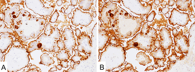 Mesothelin expression in ovary serous carcinoma.