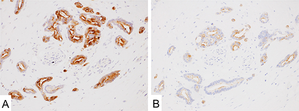Mesothelin expression in adenocarcinoma of the pancreas.