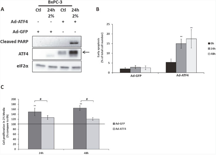The overexpression of ATF4 in BXPC-3 induces cell death and reduces cell proliferation during amino acid deprivation.
