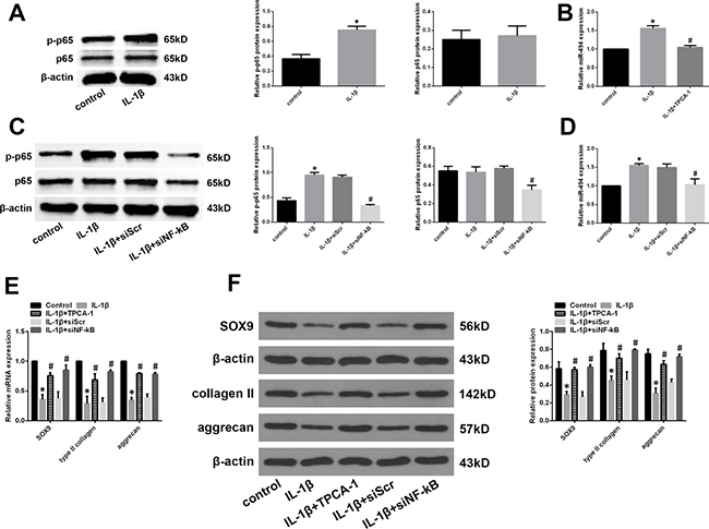 Role of NF-κB signalling in the regulation of miR-494 expression.