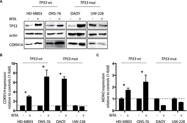 RITA restores TP53 activity in medulloblastoma cell lines with and without TP53 mutations.