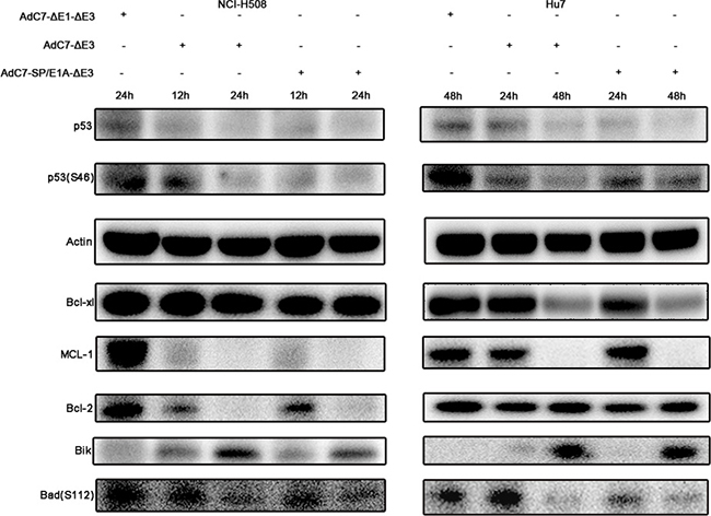Tumor cell apoptosis is induced by AdC7-SP/E1A-ΔE3 via a p53-independent mitochondrial pathway.