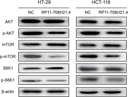 RP11-708H21.4 blocks AKT/mTOR pathway in CRC cells.