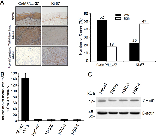 Expression analysis of human CAMP/LL-37 in normal oral mucosa, OSCC tissues and epithelial cancer cells.