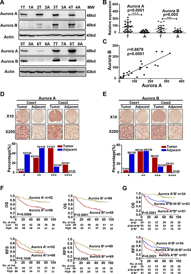Aurora A and B were overexpressed in parallel and predicted a poorer prognosis in HCC.