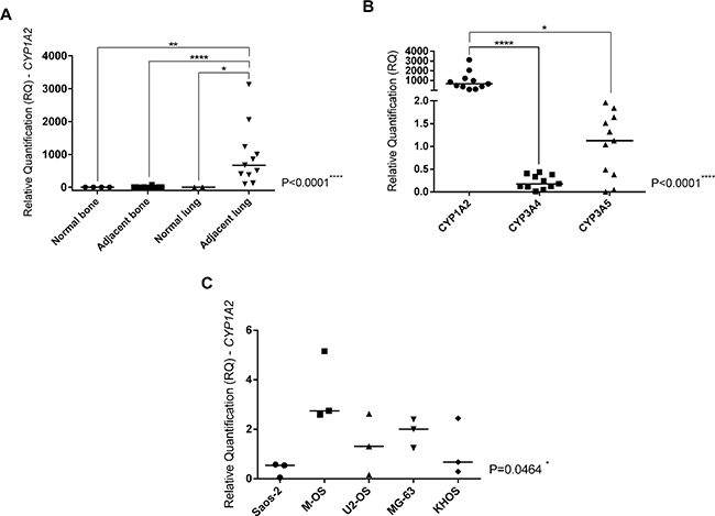 CYP1A2 expression and its correlation with OS metastasis and metastatic tumor microenvironment.