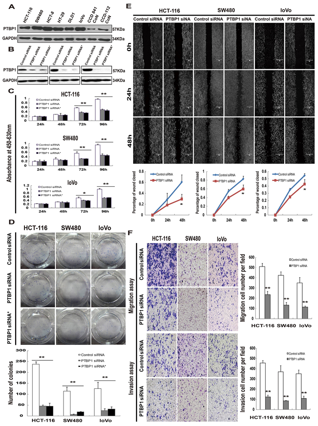 Kockdown of PTBP1 inhibites tumor proliferation and migration/invasion in vitro.