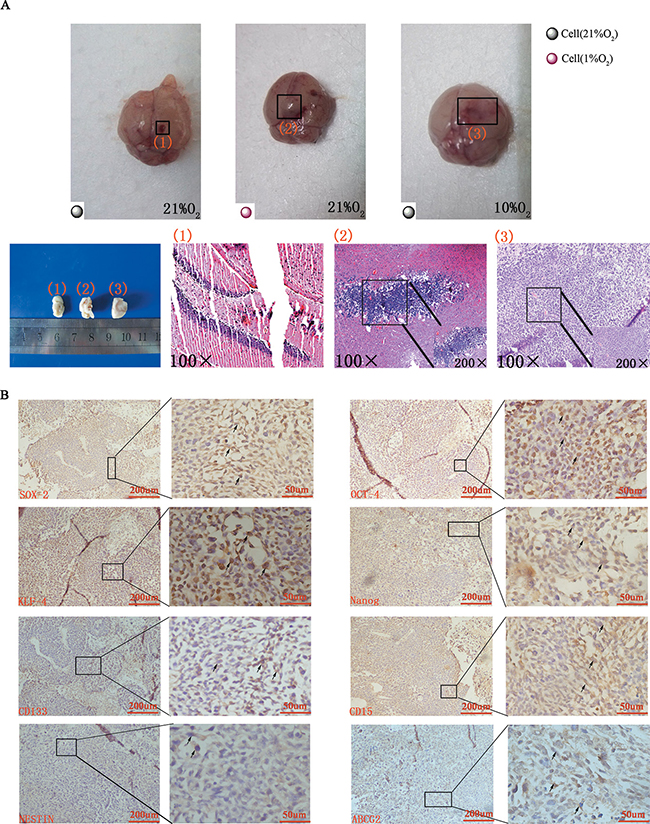 Tumor formation and immunohistochemical staining in vivo.