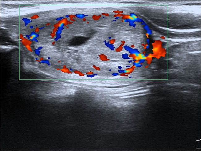 Female patient, 35 years old, sporadic MTC.