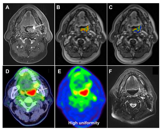 A 62-year-old male patient with oropharyngeal squamous cell carcinoma and a score of 1 based on the prognostic system developed in the current study.