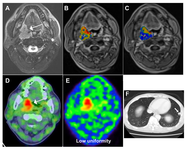 A 51-year-old male patient with oropharyngeal squamous cell carcinoma and a score of 4 based on the prognostic system developed in the current study.