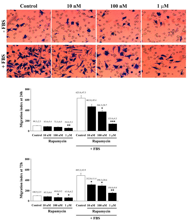 Rapamycin dose-dependently suppresses FBS-induced cell migration.
