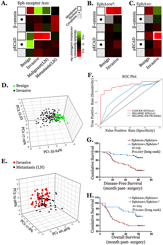 Profile of expression pattern of EPHA10 isoforms in the progression of breast cancer.