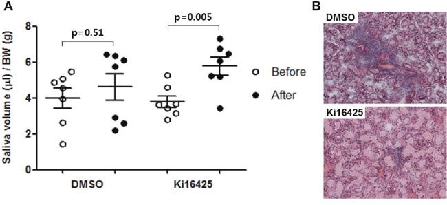 Ki16425 treatment improved disease symptom in the spontaneous SS NOD model.