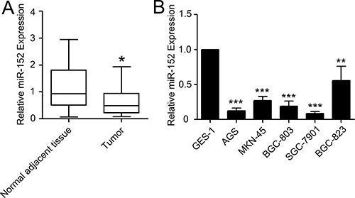 Expression of miR-152 in gastric cancer patients and cell lines.