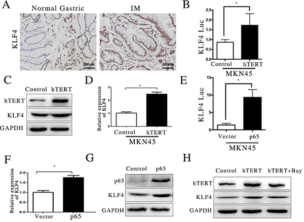 hTERT activated KLF4 transcription via NF-κB pathway.