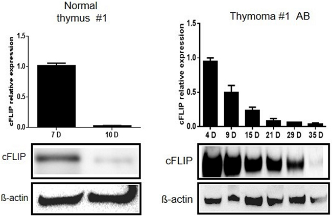 Slower decline of cFLIP mRNA and protein levels in thymoma primary epithelial cells compared to primary epithelial cells from normal thymus.