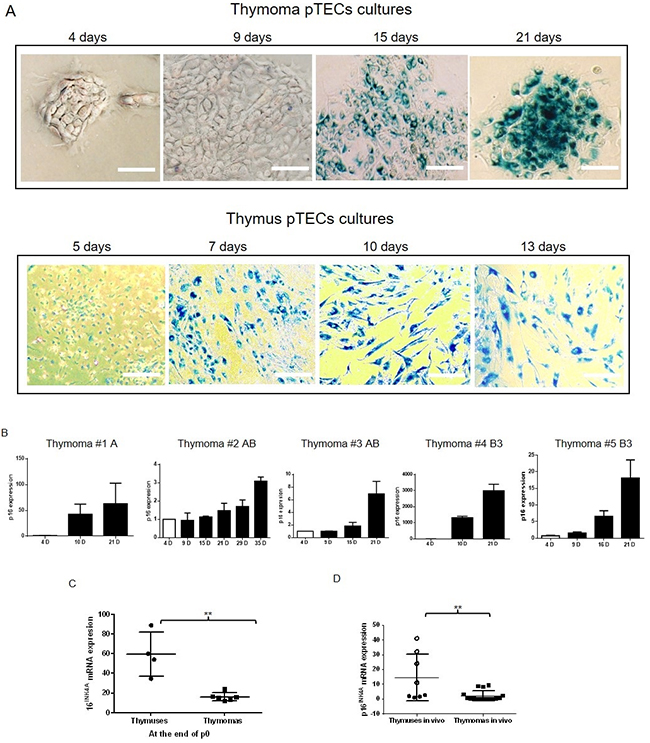 Senescence detection in thymoma and NT pTECs by X-Gal staining.