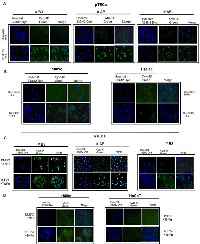 Sensitivity of sh-cFLIP transfected and EF24 treated pTECs to TNFα-induced autophagy Visualization of autophagic vacuoles in 4-day-old pTECs derived from one type AB and one B3 thymoma and in 1889c and HaCaT cells.