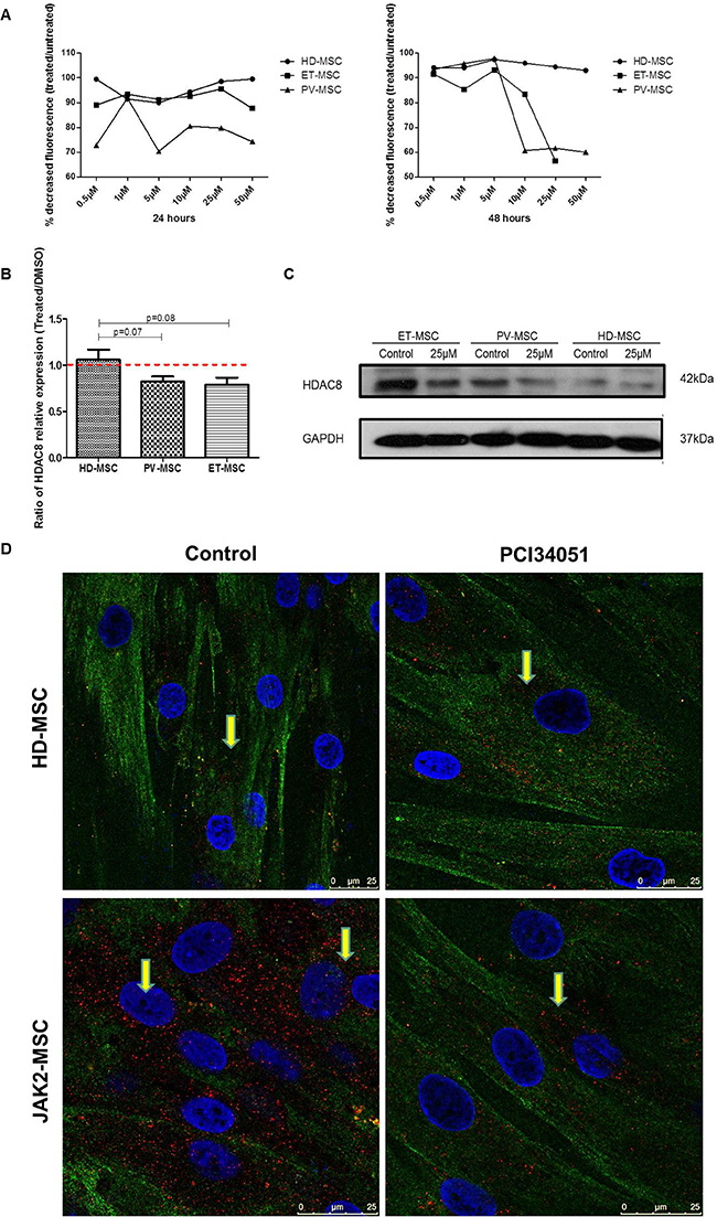 HDAC8i decrease the expression of HDAC8 in BM-MSC from JAK2V617F patients.