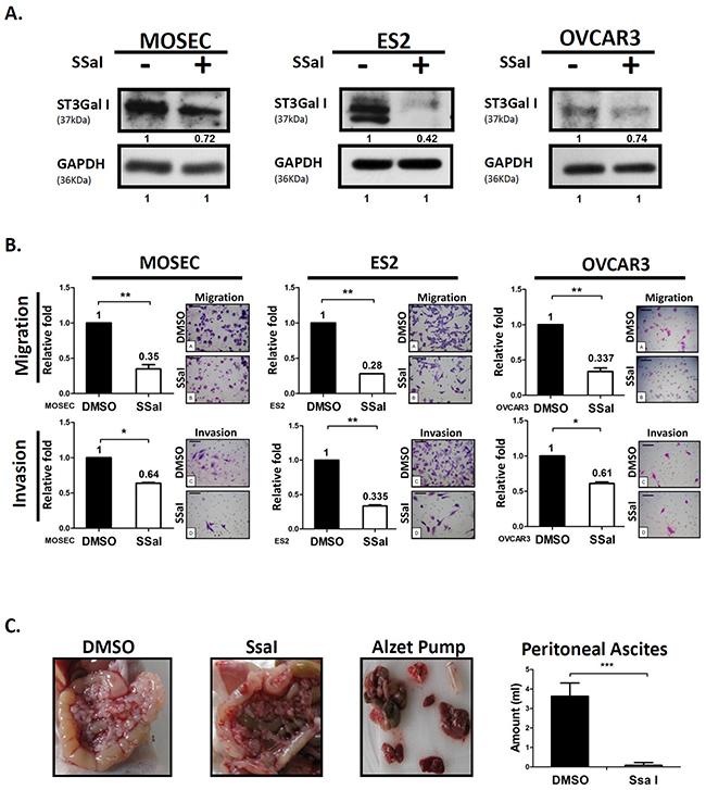 α2,3-sialylation inhibitor SsaI suppresses ovarian cancer tumor migration and peritoneal dissemination.
