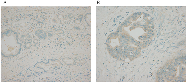 Immunohistochemical examination of bile duct cancer tissue.