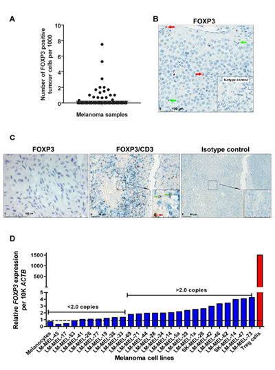 FOXP3 expression in advanced-stage melanoma.