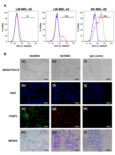 Establishment of FOXP3 over-expressing melanoma cell lines.