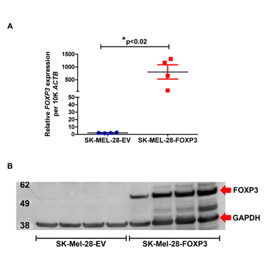 Validation of FOXP3 over-expression in SK-MEL-28 cells.