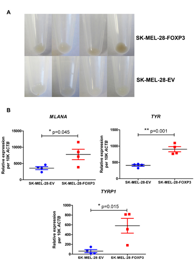 Effect of FOXP3 over-expression in SK-MEL-28 cells on melanoma cell pigmentation.