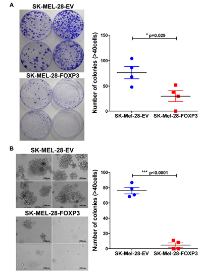Effects of FOXP3 over-expression on melanoma cell clonogenecity.
