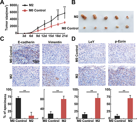In vivo assays confirmed that M2 macrophages promoted EMT through the up-regulation of LeY and phosphorylated Ezrin.