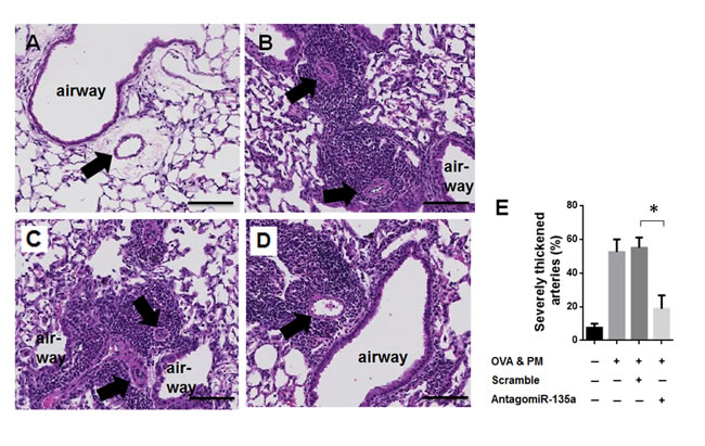 Decreased severe pulmonary arterial remodeling and thickness in AntagomiR-135a injected mice exposed to OVA & PM.