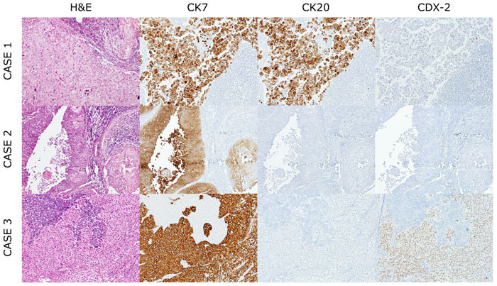 Representative histological features of cancers of unknown primary origin.