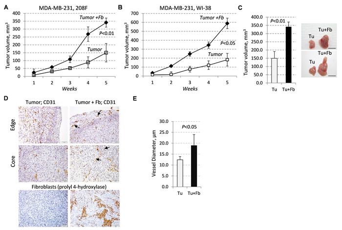 Tumor growth and vasculature are enhanced by fibroblasts.