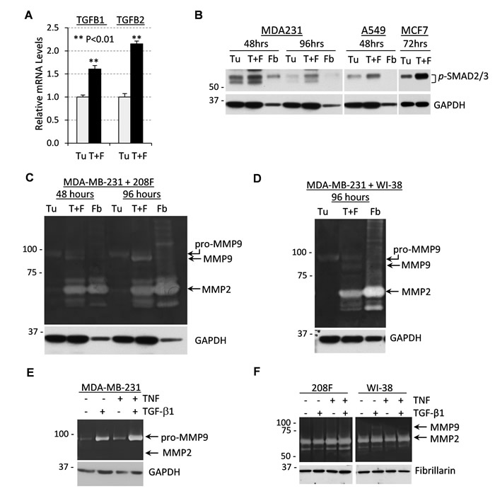 Tumor-fibroblast co-cultures produce high levels of TGF-β cytokines and MMP9 secreted by tumor cells.