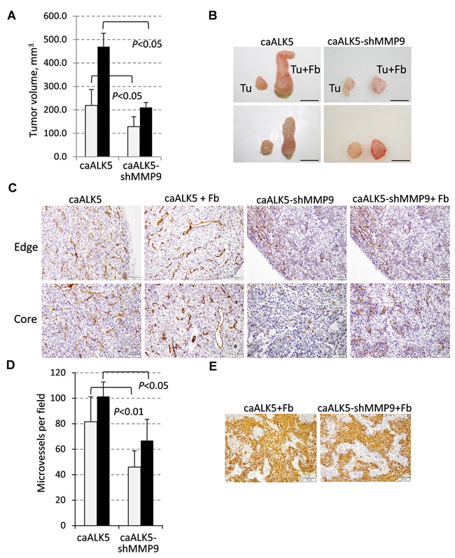 Fibroblast-mediated enhancement of tumor growth and vascularization depends on MMP9.