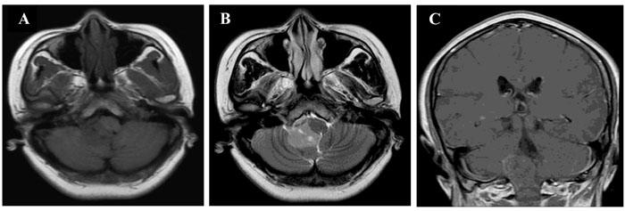 MRI findings in patient 2.