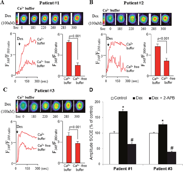 Dexamethasone stimulates intracellular Ca2+ release and SOCE in primary blasts from ALL patients.