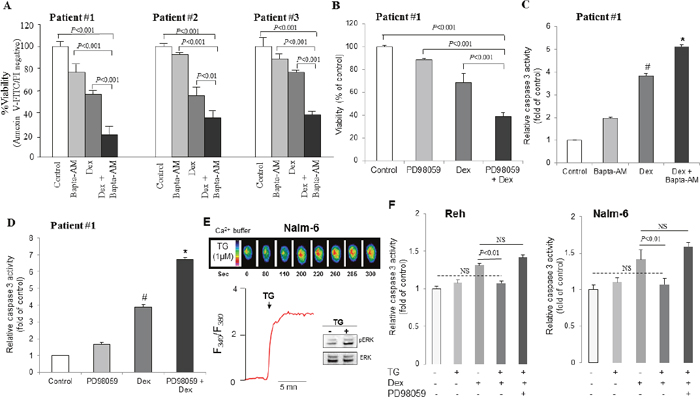 Dexamethasone-induced apoptosis is enhanced by chelating Ca2+ signaling and inhibition of ERK1/2 pathway in primary blasts from ALL patients.