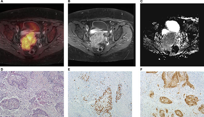 Imaging and histopathological findings in a patient with T4a N0 M0 uterine cervical cancer.