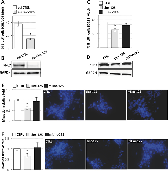 Effects of linc-NeD125 overexpression or knockdown on MB cell properties.