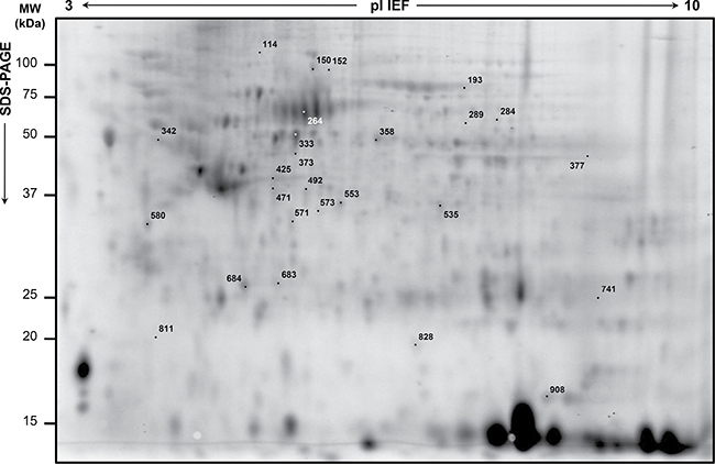 Representative analytical proteome map of rectal cancer (RC).